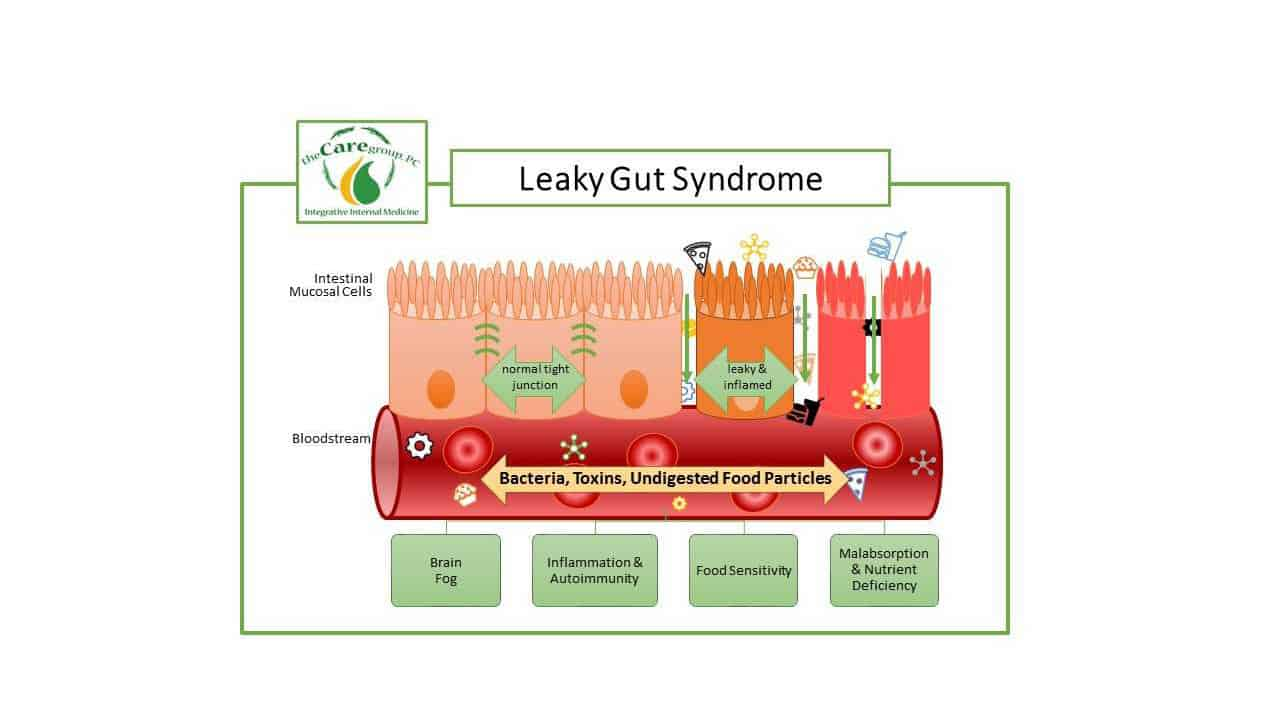 Leaky Gut Syndrome Diagram